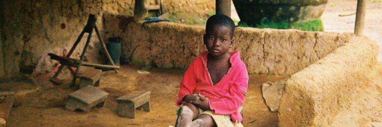 Joachim, un niño traficado de Benin