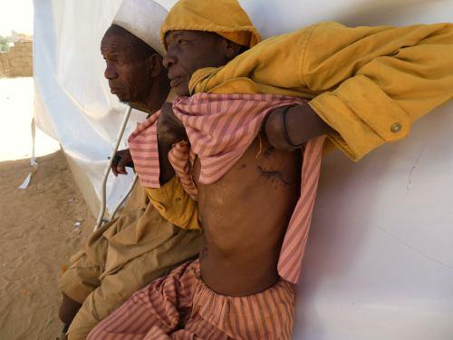 Una víctima de Boko Haram enseña las lesiones que le provocaron en Maiduguri